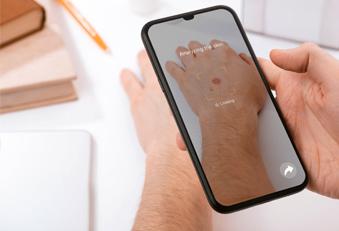 Hautkrebsscreening mit dem Handy