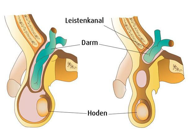 Leistenhernie - Serie Männergesundheit Teil 6 | A.Vogel