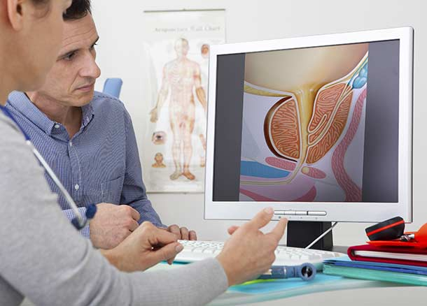 Prostatabeschwerden symptoms except