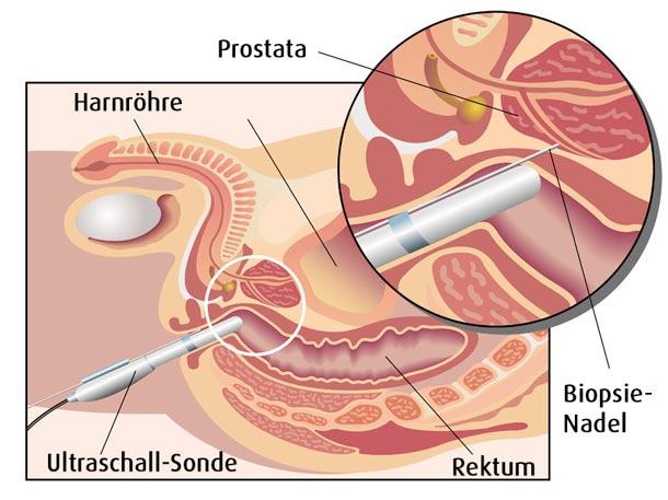 Prostata selbst tasten